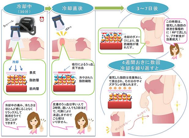 脂肪冷却痩身施術の流れ