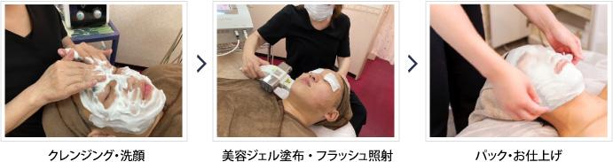 メンズフォト美顔 施術の流れ工程写真